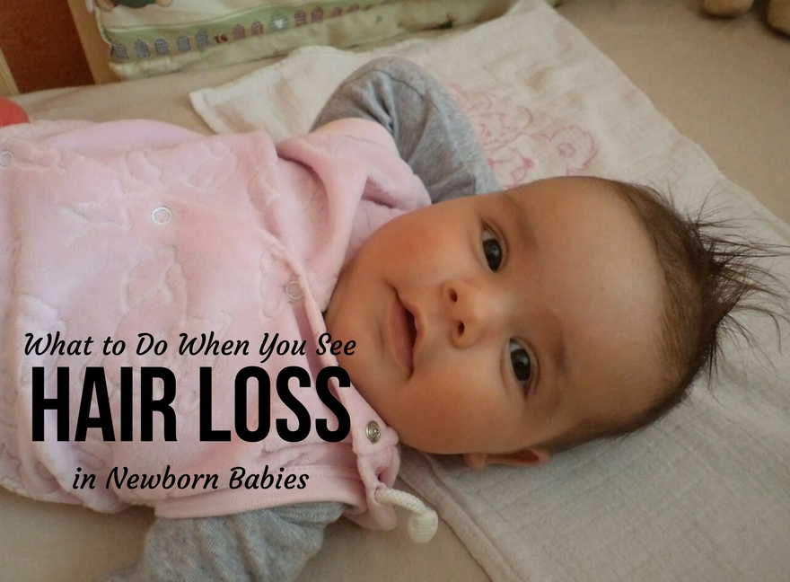 What to Do When You See Hair Loss in Newborn Babies