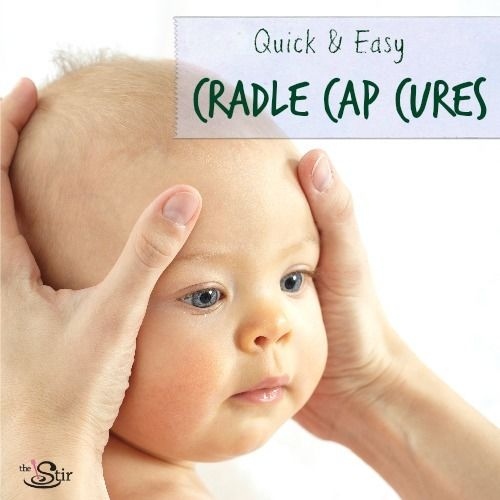 Natural Remedies For Baby Dry Face