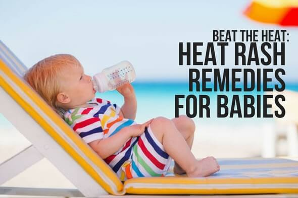 BEAT THE HEAT: HEAT RASH REMEDIES FOR BABIES