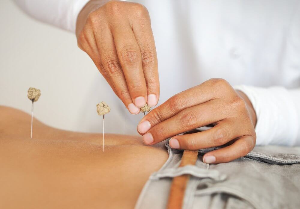 HOW OFTEN SHOULD I DO ACUPUNCTURE DURING PREGNANCY?